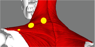 release trigger points in trapezius muscle