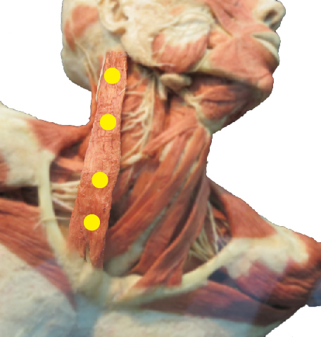 sternocleinomastoid (scm) trigger points