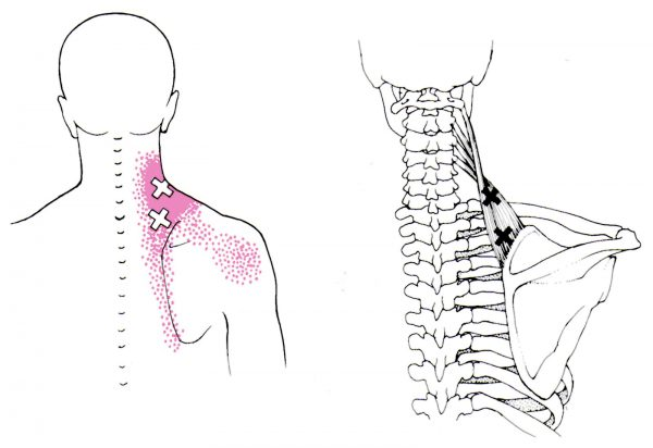 levator scapulae trigger point tp buddierx