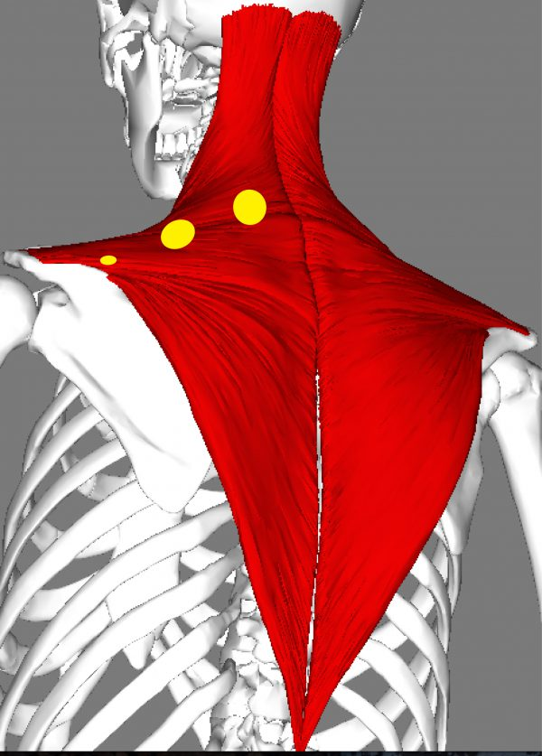 treating tight trapezius muscle trigger points